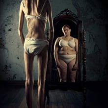 Fear of Fat People Phobia - Cacomorphobia
